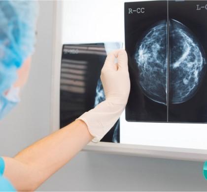 Pós em Diagnóstico por Imagem – Início Agosto/2021